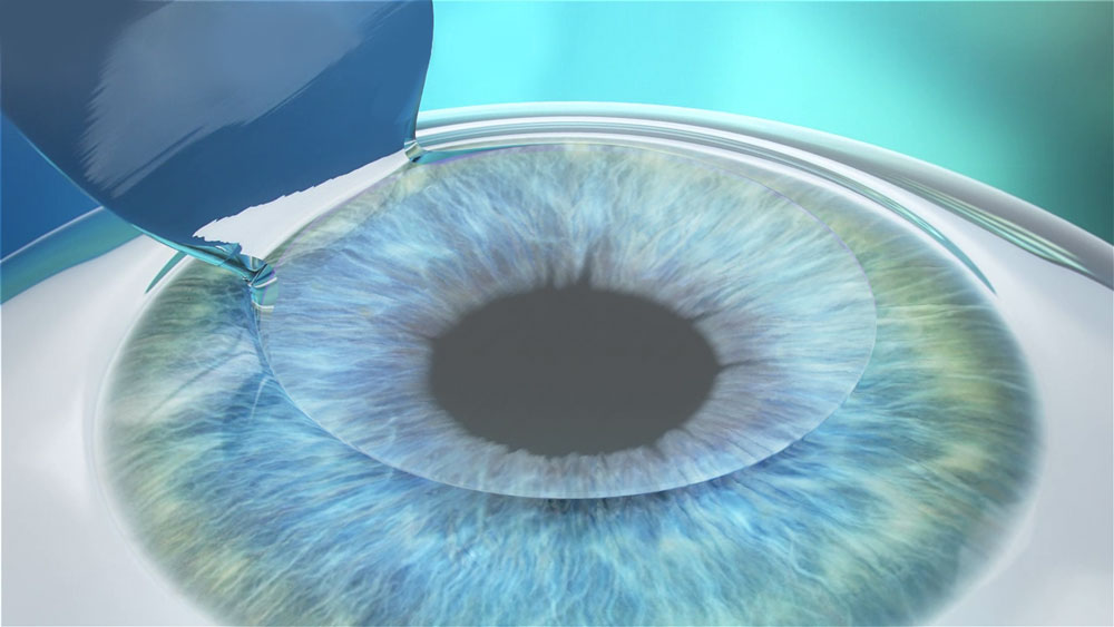 lasik a guide to laser vision correction